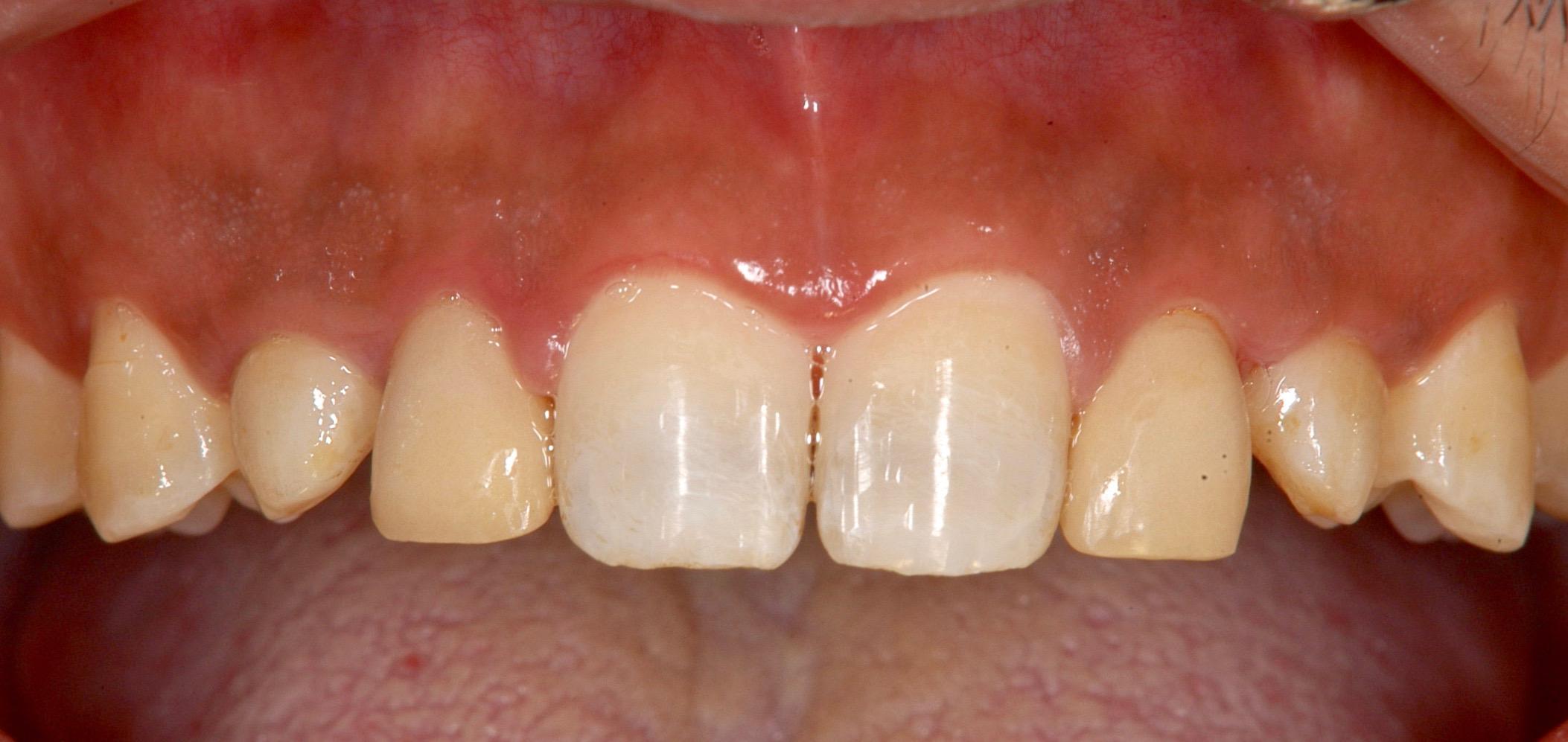 H24.5.10 ステント装着前後前歯部 (4)