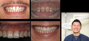 糸切り歯が生まれつきないため歯が小さく前歯に隙間ができていました矯正をおこなったのち ない糸切り歯の部分にインプラントにて歯を作りセラミックにて修復しました。当医院のスタッフ   費用180万