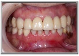 噛み合わせを高くして前歯も長くした仮の歯