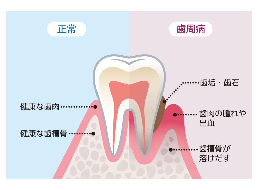 歯周病の解説