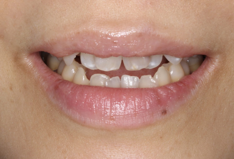 虫歯に悩んでいた40代女性